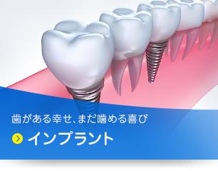 歯がある幸せ、まだ噛める喜び インプラント